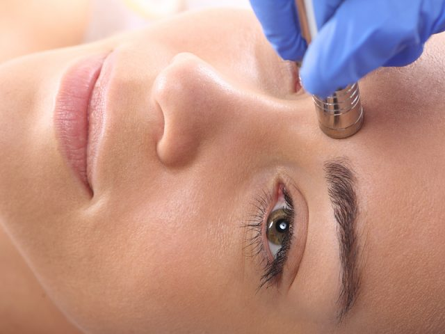 The Numerous Benefits of Microdermabrasion Use